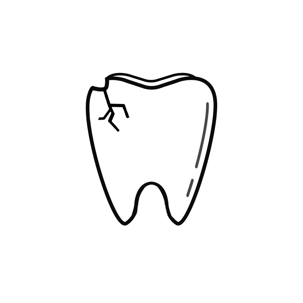 Whether you are chewing on ice or grinding your teeth at night, there's always a chance of putting your teeth at risk. If you have chipped your tooth, there's no need to panic. Here are a few things we can do to restore your beautiful smile: