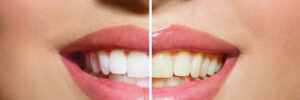 dentist Sioux City